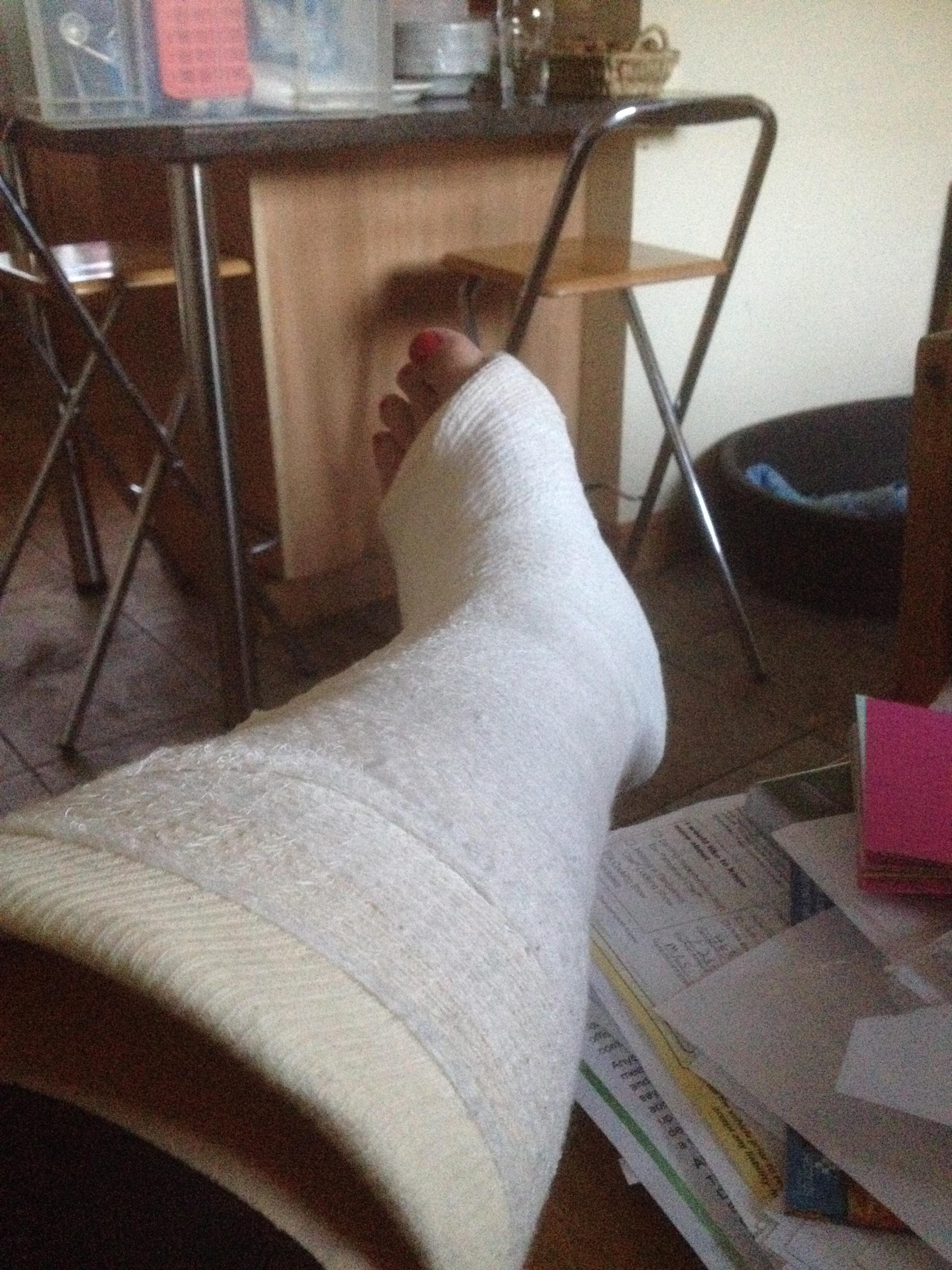 Foot in plaster
